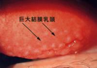 巨大乳頭結膜炎