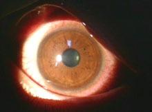 眼障害例C